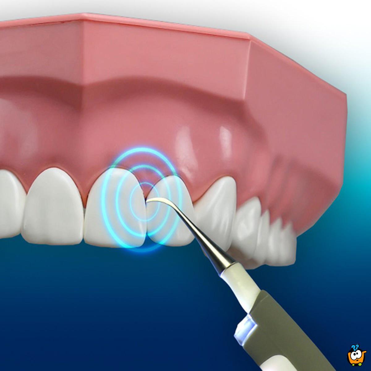 Sonic pic - Aparat za skidanje kamenca sa zuba